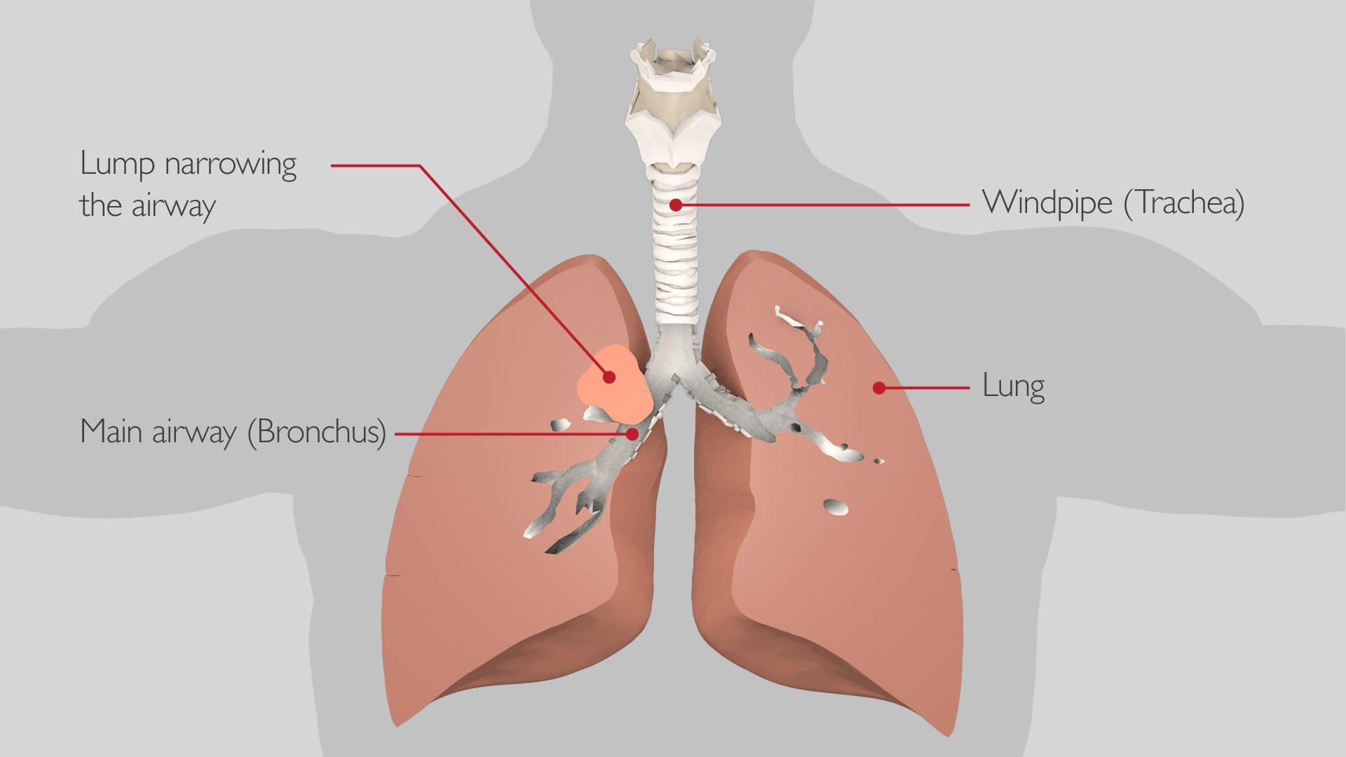 bronchoscopy_stent_1_v2