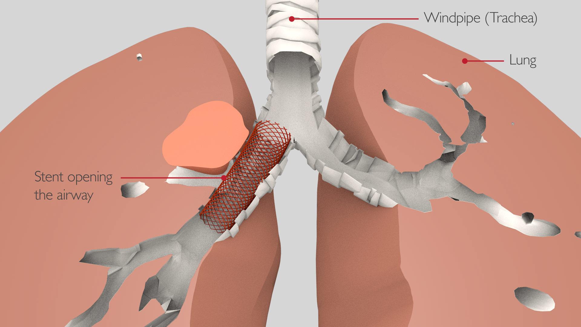 bronchoscopy_stent_2_v2